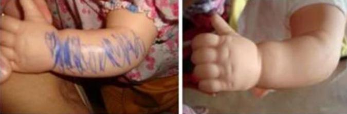 oyuncak-bebek-tukenmez-kalem lekesi nasil cikar